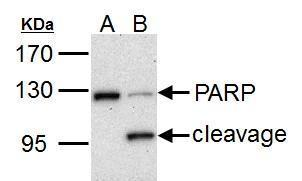 PARP1 antibody detects PARP1 protein by western blot analysis.A. 30 μg HCT116 whole cell lysate/extract (untreated)B. 30 μg HCT116 whole cell lysate/extract (30 μM cisplatin treatment for 24hr)7.5% SDS-PAGEPARP1 antibody (GRP464) dilution: 1:1000