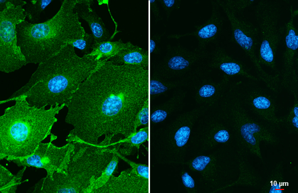 PD-L1 antibody detects PD-L1 protein by immunofluorescent analysis.Sample: MDA-MB-231 (left) and HeLa (right) cells were fixed in ice-cold MeOH for 5 min.Green: PD-L1 stained by PD-L1 antibody (GRP487) diluted at 1:500.Blue: Hoechst 33342 staining.Scale b