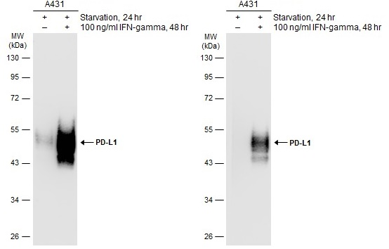 Untreated (–) and treated (+) A431 whole cell extracts (30 μg) were separated by 10% SDS-PAGE, and the membranes were blotted with PD-L1 antibody (GRP487) diluted at ) diluted at 1:500. The HRP-conjugated anti-rabbit IgG antibody  was used to detect