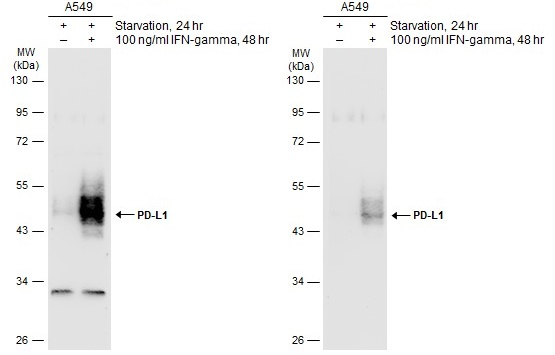 Untreated (–) and treated (+) A549 whole cell extracts (30 μg) were separated by 10% SDS-PAGE, and the membranes were blotted with PD-L1 antibody (GRP487) diluted at ) diluted at 1:500. The HRP-conjugated anti-rabbit IgG antibody  was used to detect