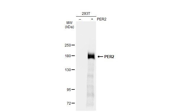Non-transfected (–) and transfected (+) 293T whole cell extracts (30 μg) were separated by 5% SDS-PAGE, and the membrane was blotted with PER2 antibody (GRP611) diluted at 1:20000. The HRP-conjugated anti-rabbit IgG antibody  was used to detect the p