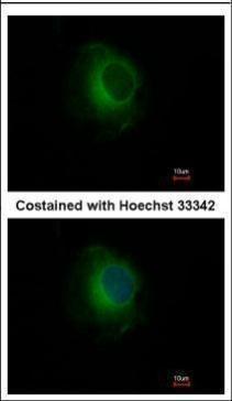 Immunofluorescence analysis of methanol-fixed HeLa, using Plasminogen(GRP481) antibody at 1:500 dilution.