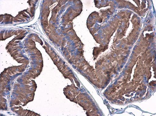 Plasminogen antibody detects Plasminogen protein at cytoplasm in rat prostate by immunohistochemical analysis. Sample: Paraffin-embedded rat prostate. Plasminogen antibody (GRP481) diluted at 1:500.