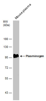 Mouse tissue extract (50 μg) was separated by 7.5% SDS-PAGE, and the membrane was blotted with Plasminogen antibody (GRP481) diluted at 1:500. The HRP-conjugated anti-rabbit IgG antibody  was used to detect the primary antibody.