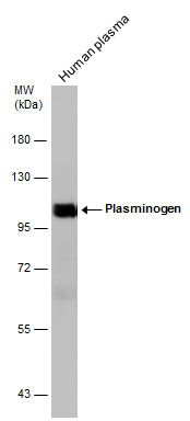 Human tissue extract (30 μg) was separated by 7.5% SDS-PAGE, and the membrane was blotted with Plasminogen antibody (GRP481) diluted at 1:2000. The HRP-conjugated anti-rabbit IgG antibody  was used to detect the primary antibody.