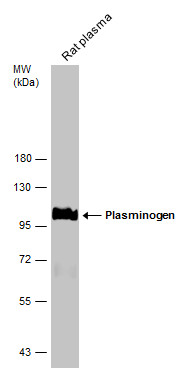 Rat tissue extract (50 μg) was separated by 7.5% SDS-PAGE, and the membrane was blotted with Plasminogen antibody (GRP481) diluted at 1:500. The HRP-conjugated anti-rabbit IgG antibody  was used to detect the primary antibody.