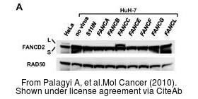 The WB analysis of Rad50 antibody [13B3] was published by Palagyi A and colleagues in the journal Mol Cancer in 2010 .