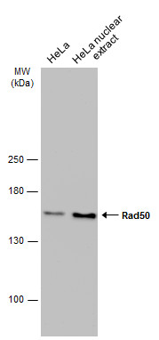 HeLa whole cell and nuclear extracts (30 μg) were separated by 5% SDS-PAGE, and the membrane was blotted with Rad50 antibody [13B3] (GRP541) diluted at 1:1000. The HRP-conjugated anti-mouset IgG antibody  was used to detect the primary antibody.