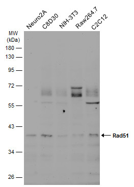 Various whole cell extracts (30 μg) were separated by 10% SDS-PAGE, and the membrane was blotted with Rad51 antibody [14B4] (GRP542) diluted at 1:500. The HRP-conjugated anti-mouset IgG antibody  was used to detect the primary antibody, and the signal
