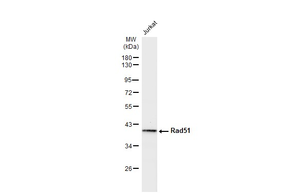 Whole cell extract (30 μg) was separated by 10% SDS-PAGE, and the membrane was blotted with Rad51 antibody [14B4] (GRP542) diluted at 1:500. The HRP-conjugated anti-mouse IgG antibody  was used to detect the primary antibody.