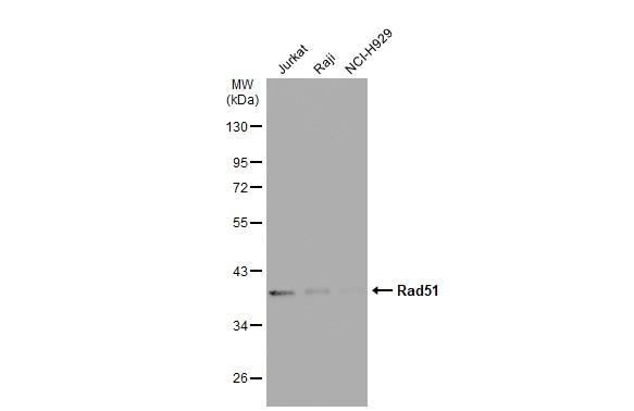 Various whole cell extracts (30 μg) were separated by 10% SDS-PAGE, and the membrane was blotted with Rad51 antibody [14B4] (GRP542) diluted at 1:500. The HRP-conjugated anti-mouse IgG antibody  was used to detect the primary antibody, and the signal w