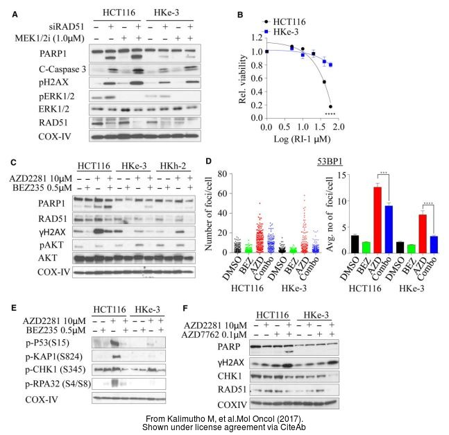 The WB analysis of Rad51 antibody [14B4] was published by Kalimutho M and colleagues in the journal Mol Oncol in 2017 .