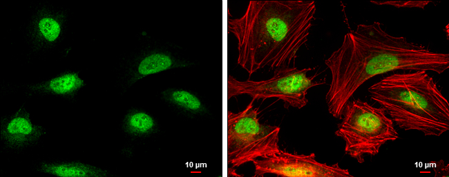 Rad51 antibody [N1C2] detects Rad51 protein at nucleus by immunofluorescent analysis.Sample: HeLa cells were fixed in 4% paraformaldehyde at RT for 15 min.Green: Rad51 protein stained by Rad51 antibody [N1C2] (GRP460) diluted at 1:500.Red: phalloidin, a c