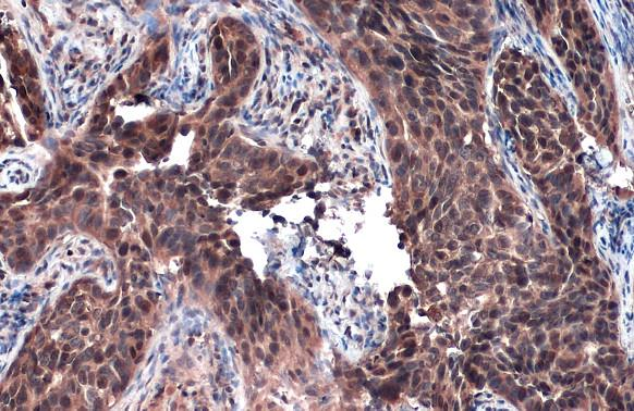 Rad51 antibody [N1C2] detects Rad51 protein at cytoplasm and nucleus by immunohistochemical analysis.Sample: Paraffin-embedded human cervical carcinoma.Rad51 stained by Rad51 antibody [N1C2] (GRP460) diluted at 1:500.Antigen Retrieval: Citrate buffer, pH