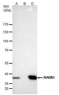 Rad51 antibody [N1C2] immunoprecipitates Rad51 protein in IP experiments.IP samples: Jurkat whole cell extractA. 40 ?g Jurkat whole cell extractB. Control with 4 ?g of preimmune Rabbit IgGC. Immunoprecipitation of Rad51 protein by 4 ?g Rad51 antibody [N1C