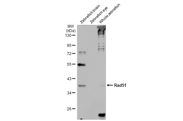 Various tissue extracts (30 μg) were separated by 10% SDS-PAGE, and the membrane was blotted with Rad51 antibody [N1C2] (GRP460) diluted at 1:1000. The HRP-conjugated anti-rabbit IgG antibody  was used to detect the primary antibody, and the signal was