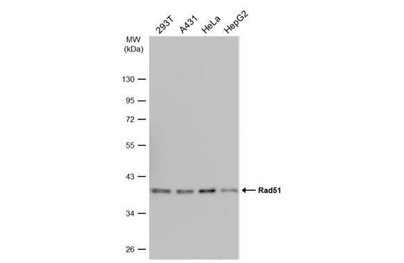Various whole cell extracts (30 μg) were separated by 10% SDS-PAGE, and the membrane was blotted with Rad51 antibody [N1C2] (GRP460) diluted at 1:1000. The HRP-conjugated anti-rabbit IgG antibody  was used to detect the primary antibody.
