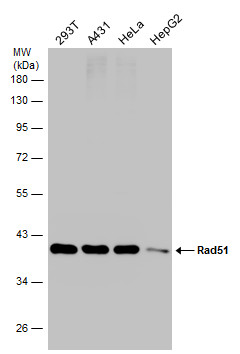 Various whole cell extracts (30 μg) were separated by 10% SDS-PAGE, and the membrane was blotted with Rad51 antibody [N1C2] (GRP460) diluted at 1:1000.