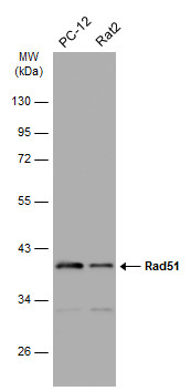 Various whole cell extracts (30 μg) were separated by 10% SDS-PAGE, and the membrane was blotted with Rad51 antibody [14B4] (GRP460) diluted at 1:500. The HRP-conjugated anti-rabbit IgG antibody  was used to detect the primary antibody.