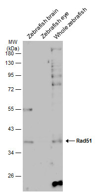 Various tissue extracts (30 μg) were separated by 10% SDS-PAGE, and the membrane was blotted with Rad51 antibody [N1C2] (GRP460) diluted at 1:500. The HRP-conjugated anti-rabbit IgG antibody  was used to detect the primary antibody, and the signal was
