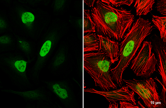 Rb antibody detects Rb protein at nucleus by immunofluorescent analysis.Sample: HeLa cells were fixed in 4% paraformaldehyde at RT for 15 min.Green: Rb stained by Rb antibody (GRP463) diluted at 1:500.Red: phalloidin, a cytoskeleton marker, diluted at 1:2