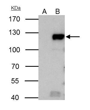 Rb antibody immunoprecipitates retinoblastoma 1 protein in IP experiments.IP samples: HeLa whole cell extractA. Control with 4 ?g of preimmune Rabbit IgGB. Immunoprecipitation of retinoblastoma 1 protein by 4 ?g Rb antibody (GRP463)7.5 % SDS-PAGEThe immun