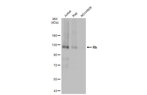 Various whole cell extracts (30 μg) were separated by 7.5% SDS-PAGE, and the membrane was blotted with Rb antibody (GRP463) diluted at 1:1000. The HRP-conjugated anti-rabbit IgG antibody  was used to detect the primary antibody.