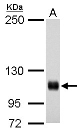Rb antibody detects Rb protein by western blot analysis.A. 30 μg A431 whole cell lysate/extract5% SDS-PAGERb antibody (GRP463) dilution: 1:500The HRP-conjugated anti-rabbit IgG antibody  was used to detect the primary antibody.