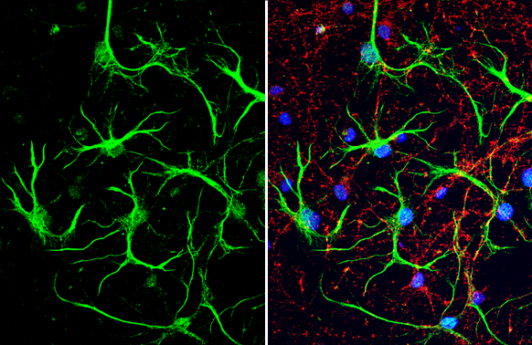 S100 beta antibody detects S100 beta protein at glia cells by immunofluorescent analysis.Sample: DIV10 rat E18 primary cortical neuron and glia cells were fixed in 4% paraformaldehyde at RT for 15 min.Green: S100 beta stained by S100 beta antibody (GRP610