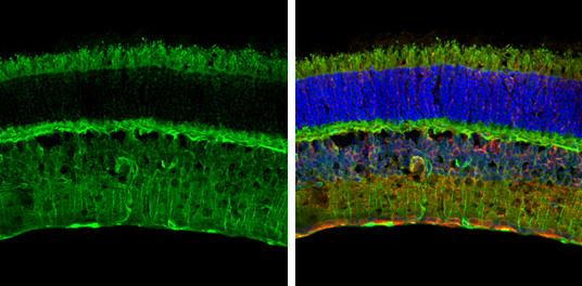 S100 beta antibody detects S100 beta protein expression by immunohistochemical analysis.Sample: Frozen sectioned adult mouse retina. Green: S100 beta stained by S100 beta antibody (GRP610) diluted at 1:250.Red: beta Tubulin 3/ TUJ1, stained by beta Tubuli
