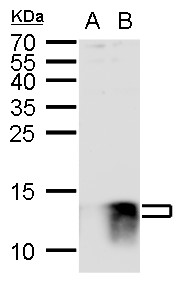 S100B antibody detects S100B protein by western blot analysis.A. 30 ?g 293T whole cell lysate/extract B. 30 ?g whole cell lysate/extract of V5-human S100B-transfected 293T cells15 % SDS-PAGES100B antibody (GRP610) dilution: 1:1000