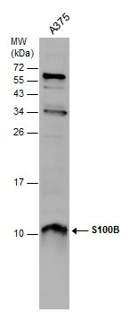 Whole cell extract (30 ?g) was separated by 15% SDS-PAGE, and the membrane was blotted with S100B antibody (GRP610) diluted at 1:500.