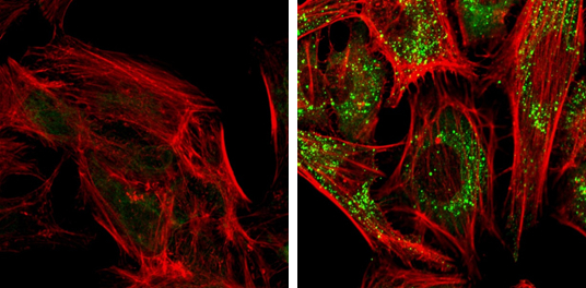 SQSTM1 antibody [N3C1], Internal detects SQSTM1 protein at autophagosome by immunofluorescent analysis. Samples: HeLa cells mock (left) and treated with 50?M Chloroquine for 24 hr (right) were fixed in 4% paraformaldehyde at RT for 15 min.Green: SQSTM1 pr