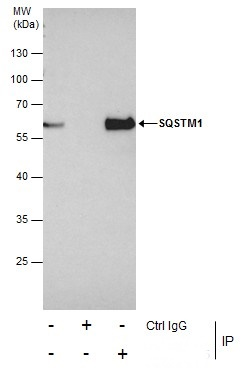 Immunoprecipitation of SQSTM1 protein from HeLa whole cell extracts using 5 ?g of SQSTM1 antibody [N3C1], Internal (GRP467).Western blot analysis was performed using SQSTM1 antibody [N3C1], Internal (GRP467).EasyBlot anti-Rabbit IgG  was used as a seconda