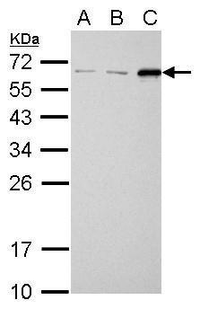 SQSTM1 antibody [N3C1], Internal detects SQSTM1 protein by western blot analysis.A. 30 μg NIH-3T3 whole cell lysate/extract B. 30 μg JC whole cell lysate/extract C. 30 μg BCL-1 whole cell lysate/extract 12% SDS-PAGESQSTM1 antibody [N3C1], Interna