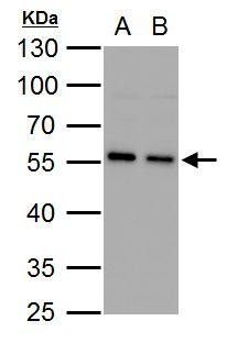 SQSTM1 antibody [N3C1], Internal detects SQSTM1 protein by western blot analysis.A. 30 μg PC-12 whole cell lysate/extract B. 30 μg Rat2 whole cell lysate/extract10% SDS-PAGESQSTM1 antibody [N3C1], Internal (GRP467) dilution: 1:1000 The HRP-conjugate