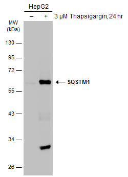 Untreated (–) and treated (+) HepG2 whole cell extracts (30 μg) were separated by 10% SDS-PAGE, and the membrane was blotted with SQSTM1 antibody [N3C1], Internal (GRP467) diluted at 1:1000. The HRP-conjugated anti-rabbit IgG antibody  was used to de