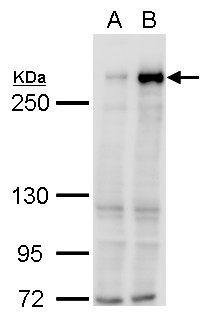 TET1 antibody [N3C1] detects TET1 protein by western blot analysis.A. 30 μg 293T whole cell lysate/extractB. 30 μg whole cell lysate/extract of DDDDK-human TET1-transfected 293T cells5% SDS-PAGETET1 antibody [N3C1] (GRP515) dilution: 1:5000 The HRP-