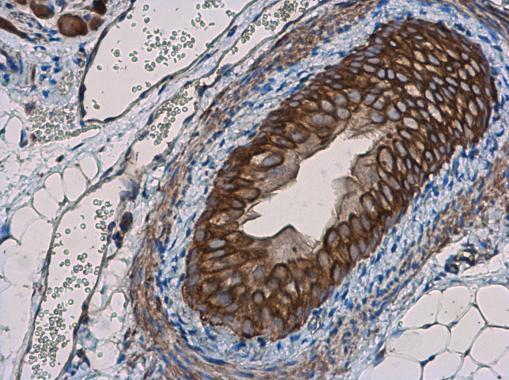 TNF alpha antibody detects TNF alpha protein at cell membrane in mouse prostate by immunohistochemical analysis. Sample: Paraffin-embedded mouse prostate. TNF alpha antibody (GRP497) diluted at 1:400.