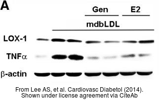 The WB analysis of TNF alpha antibody was published by Lee AS and colleagues in the journal Cardiovasc Diabetol in 2014.PMID: 24666525