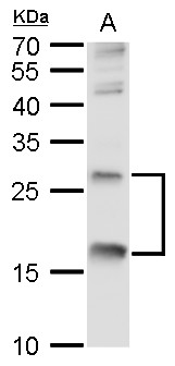 TNF alpha antibody detects TNF alpha protein by western blot analysis.A. 30 μg NCI-H929 whole cell lysate/extract12% SDS-PAGETNF alpha antibody (GRP497) dilution: 1:500 The HRP-conjugated anti-rabbit IgG antibody  was used to detect the primary antibod