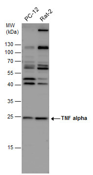 TNF alpha antibody detects TNF alpha protein by western blot analysis. Various whole cell extracts (30 μg) were separated by 12% SDS-PAGE, and the membrane was blotted with TNF alpha antibody (GRP497) diluted at 1:500. The HRP-conjugated anti-rabbit Ig