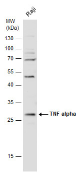 Whole cell extract (30 μg) was separated by 12% SDS-PAGE, and the membrane was blotted with TNF alpha antibody (GRP497) diluted at 1:1000. The HRP-conjugated anti-rabbit IgG antibody  was used to detect the primary antibody.