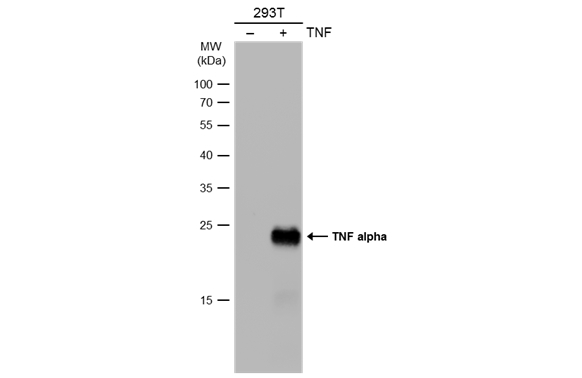 Non-transfected (–) and transfected (+) 293T whole cell extracts (30 μg) were separated by 12% SDS-PAGE, and the membrane was blotted with TNF alpha antibody (GRP497) diluted at 1:1000. The HRP-conjugated anti-rabbit IgG antibody  was used to detect