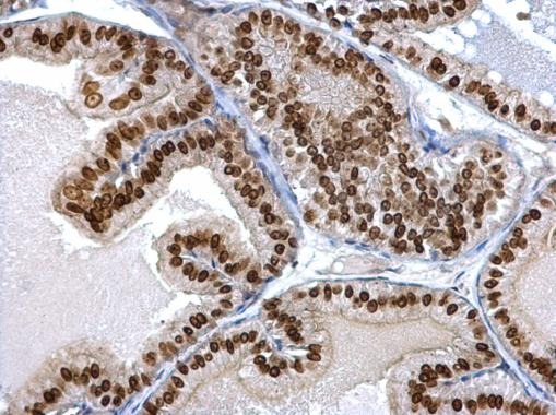 Twist1/2 antibody detects Twist1/2 protein at nucleus on mouse prostate by immunohistochemical analysis. Sample: Paraffin-embedded mouse prostate. Twist1/2 antibody (GRP518) dilution: 1:500.