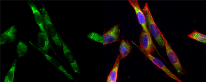 Tyrosine Hydroxylase antibody [N1C1] detects Tyrosine Hydroxylase protein at cytoplasm by immunofluorescent analysis.Sample: SK-N-SH cells were fixed in 4% paraformaldehyde at RT for 15 min.Green: Tyrosine Hydroxylase protein stained by Tyrosine Hydroxyla