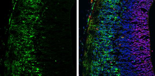 Tyrosine Hydroxylase antibody [N1C1] detects Tyrosine Hydroxylase protein expression by immunohistochemical analysis.Sample: Frozen sectioned E13.5 Rat brain. Green: Tyrosine Hydroxylase protein stained by Tyrosine Hydroxylase antibody [N1C1] (GRP562) dil