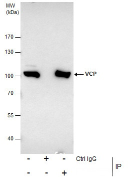 Immunoprecipitation of VCP protein from HeLa whole cell extracts using 5 ?g of VCP antibody (GRP552).Western blot analysis was performed using VCP antibody (GRP552) diluted at 1:500.EasyBlot anti-Rabbit IgG  was used as a secondary reagent.