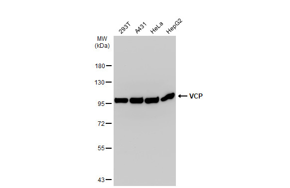 Various whole cell extracts (30 μg) were separated by 7.5% SDS-PAGE, and the membrane was blotted with VCP antibody (GRP552) diluted at 1:500. The HRP-conjugated anti-rabbit IgG antibody  was used to detect the primary antibody.
