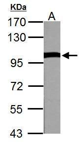 VCP antibody detects VCP protein by western blot analysis.A. 50 μg Rat brain lysate/extract7.5% SDS-PAGEVCP antibody (GRP552) dilution: 1:10000 The HRP-conjugated anti-rabbit IgG antibody  was used to detect the primary antibody.